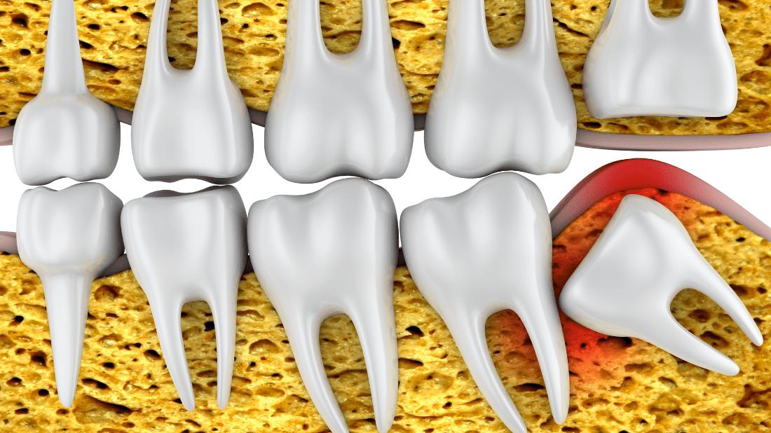 vađenje umnjaka, Estrazione dei denti del giudizio