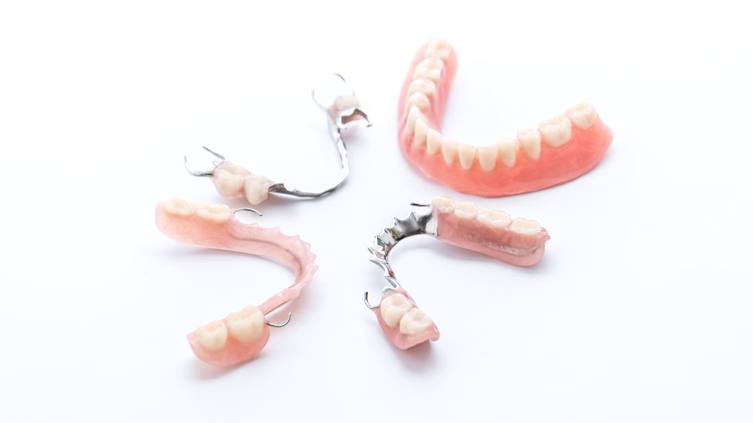 parcijalna proteza za zube
