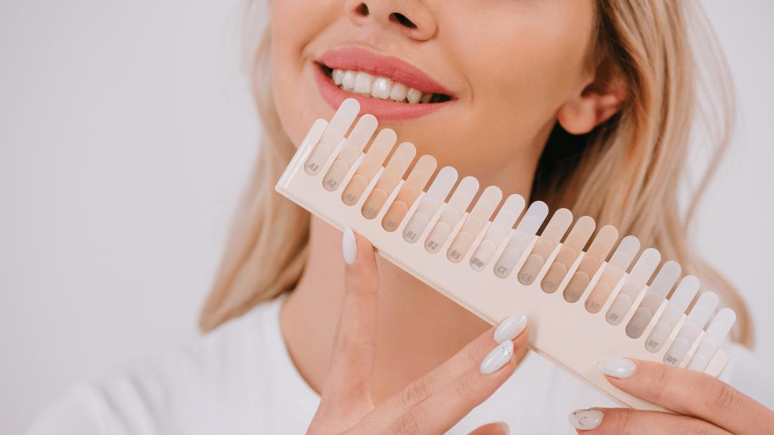 promjena boje zubi CAMBIAMENTO DEL COLORE DEI DENTI