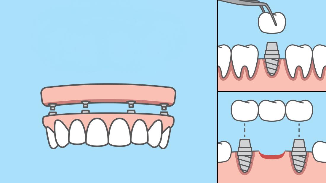 Implantološko rješenje