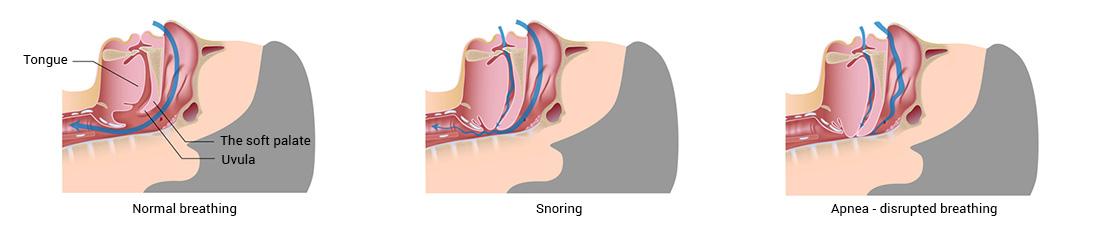 Snoring-schema