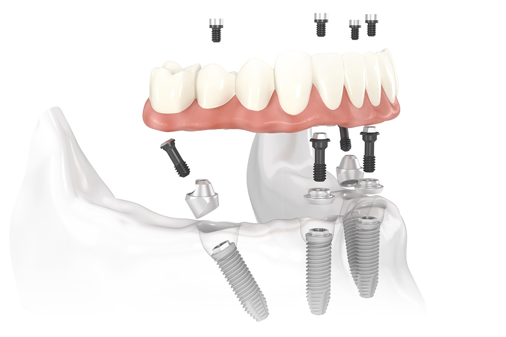 Zubni-implantati-zasto-je-marka-vazna