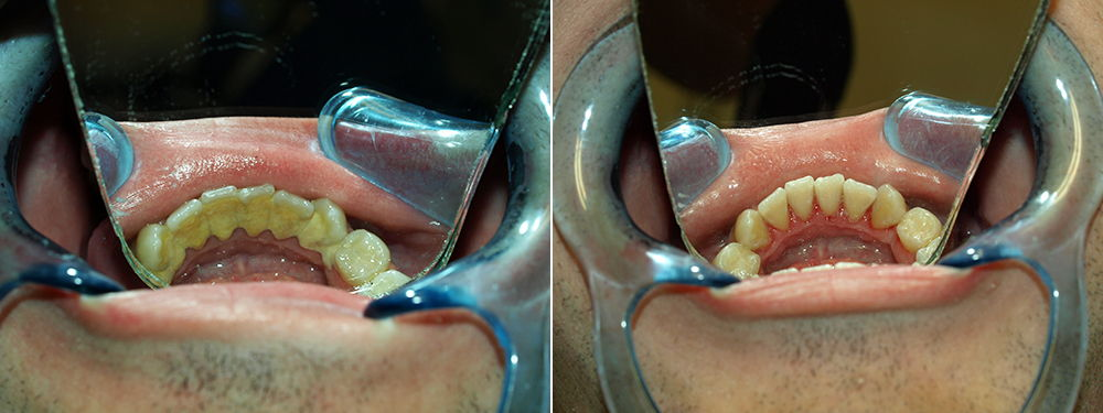 Before and after the process of dental tartar removal