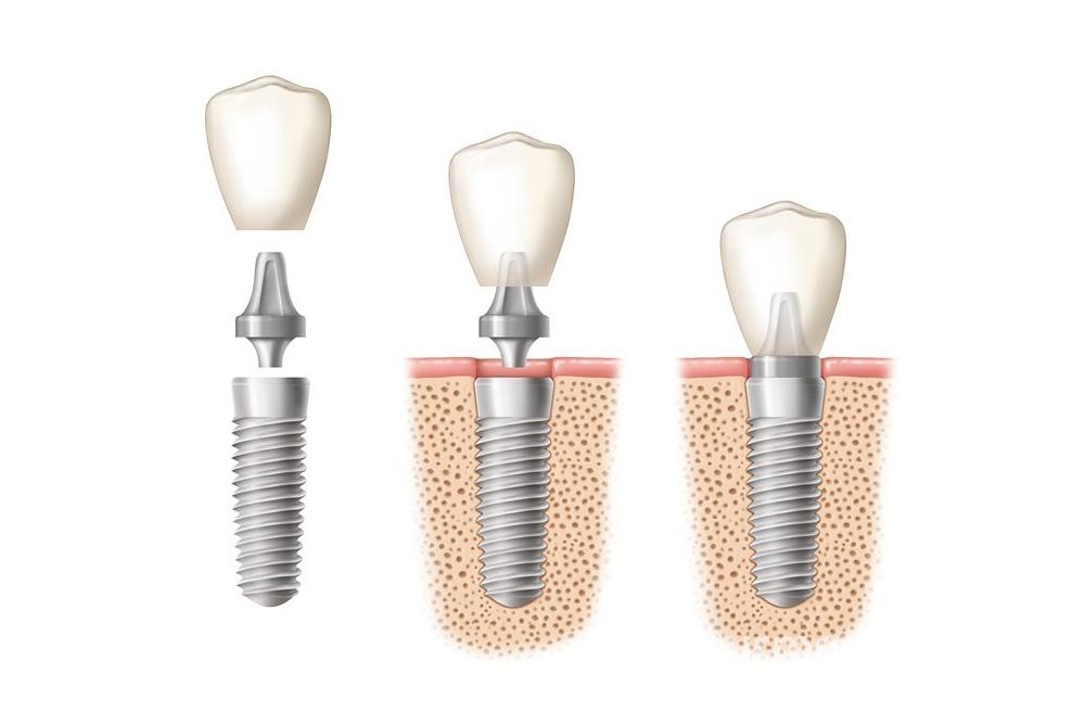 Ugradnja implantata - Zubni implantat