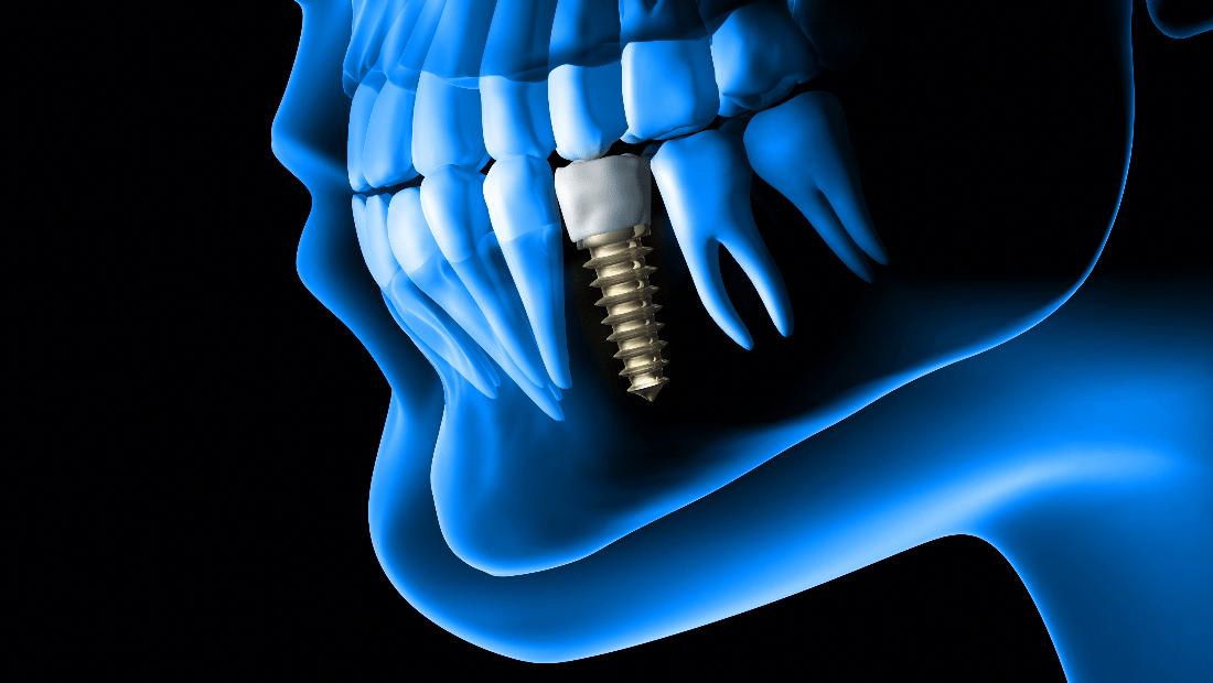 dugovjecnost implantata