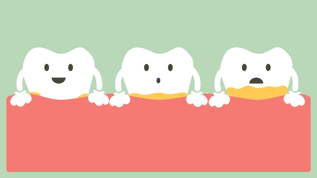 rimozione del tartaro Uklanjanje zubnog kamenca