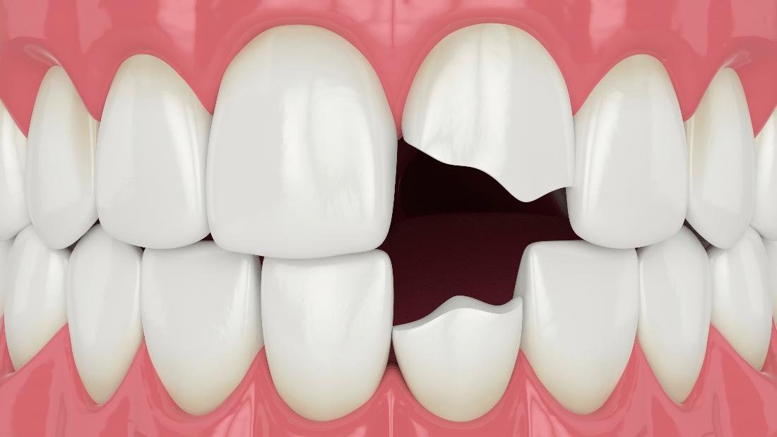 Lesioni ai denti Ozljede zuba