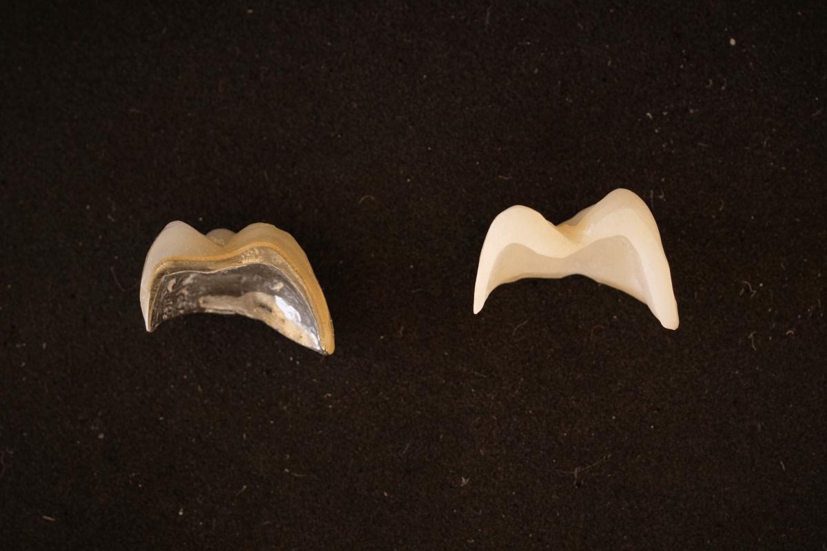 Presjek metal-keramičke i cirkon-keramičke krunice