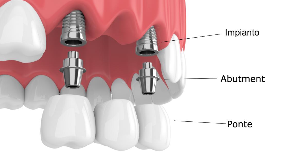set implantologico