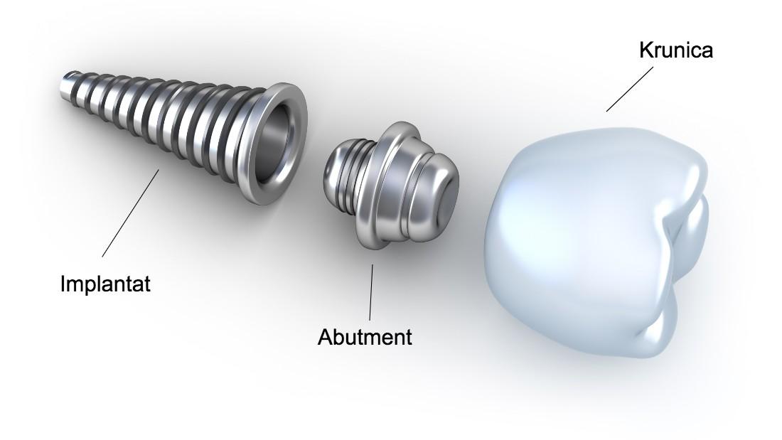 implantološki komplet