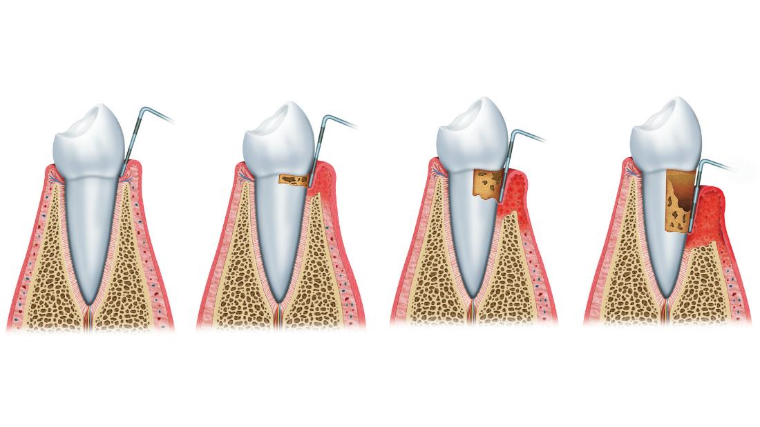 Parodontitis - paradentite